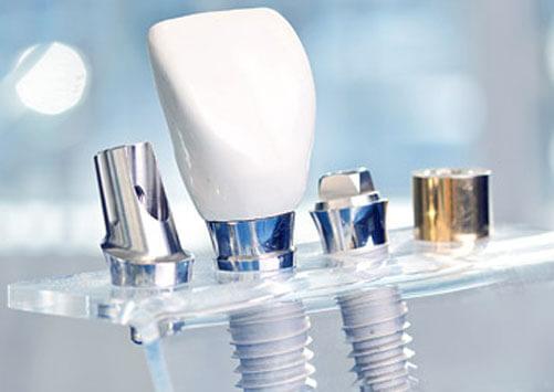 Najkvalitetniji stomatološki materijali u Lumident Studiju
