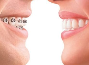 Ispravljanje nepravilnog položaja zuba - Ortodoncija