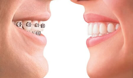 Ispravljanje nepravilnog položaja zuba – Ortodoncija