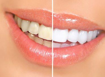 Zašto zubi menjaju svoju boju?