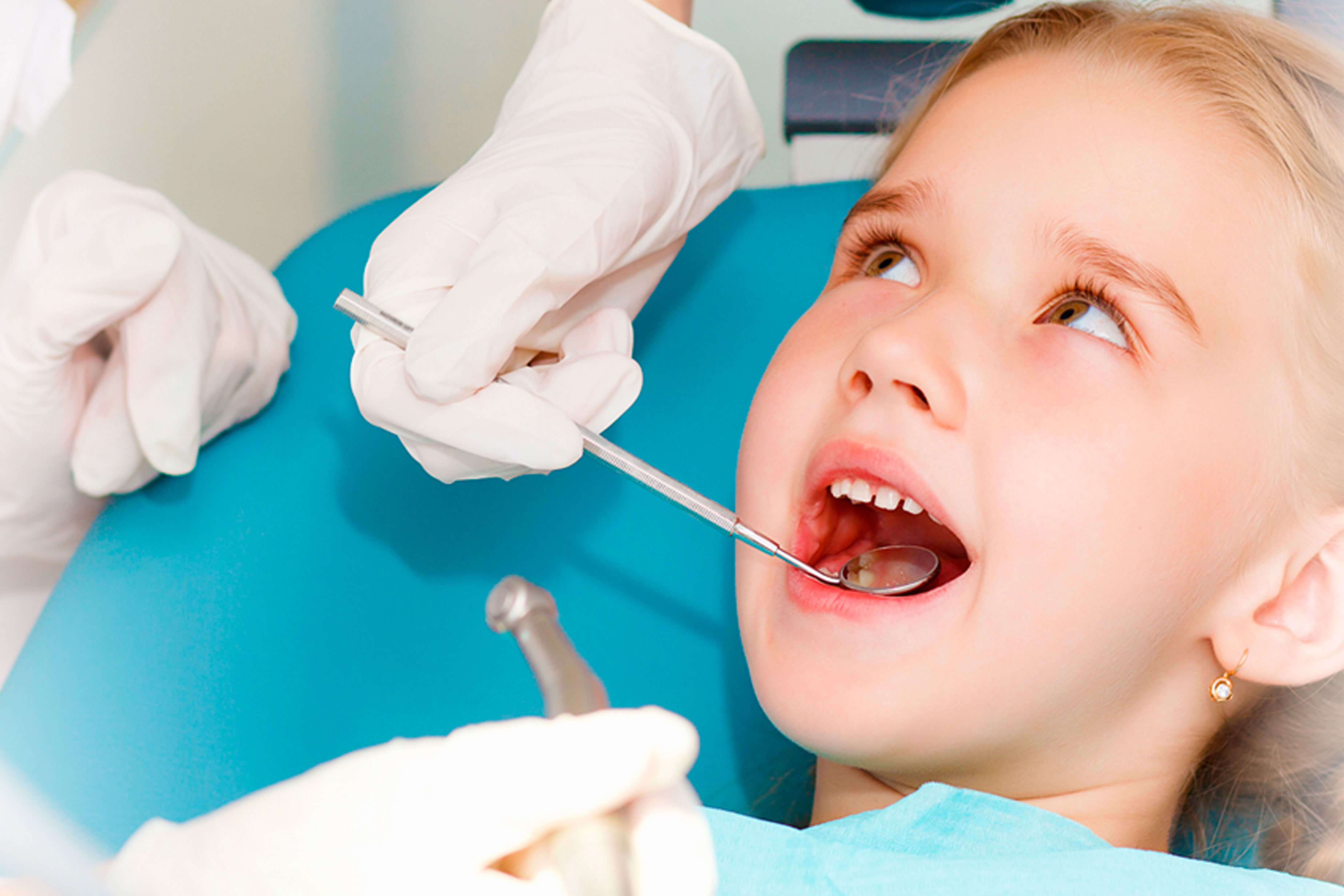 Dečiji razmak između zuba