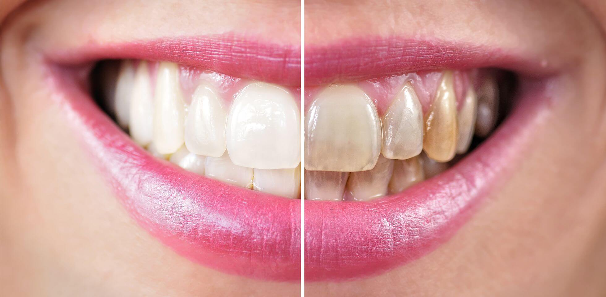 Zubne navlake cene