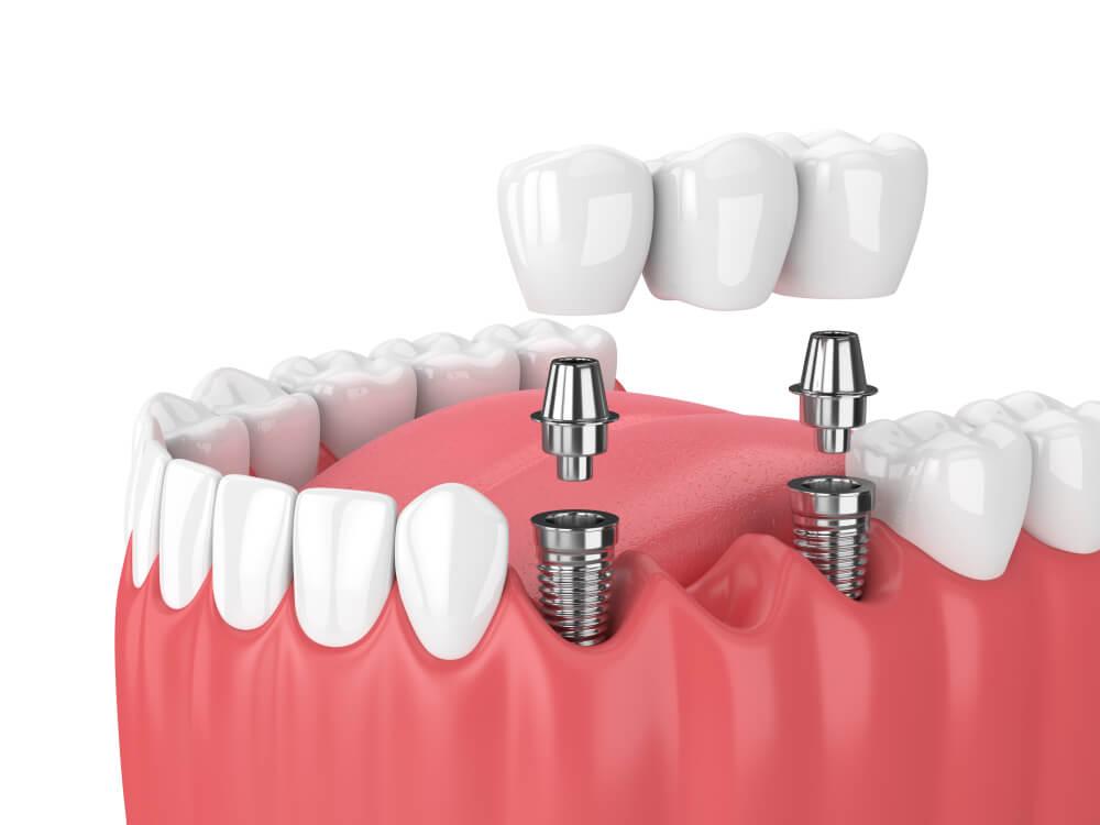 Kada su implanti bolja opcija od mosta