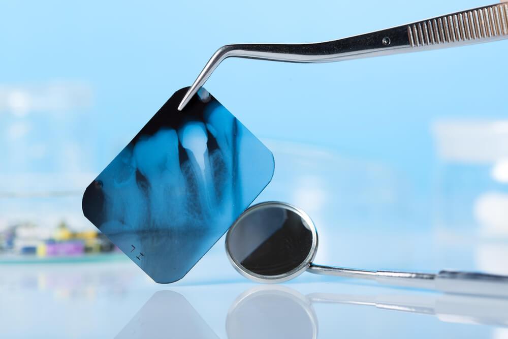 Snimanje zuba i digitalni ortopan