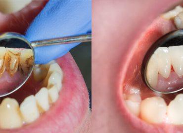 Zubni plak - Kako nastaje i kako se najlakše otklanja?