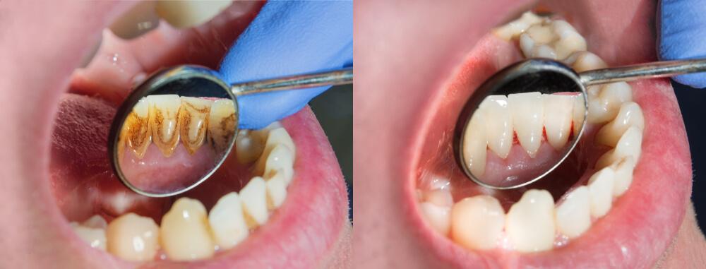 Zubni plak – Kako nastaje i kako se najlakše otklanja?