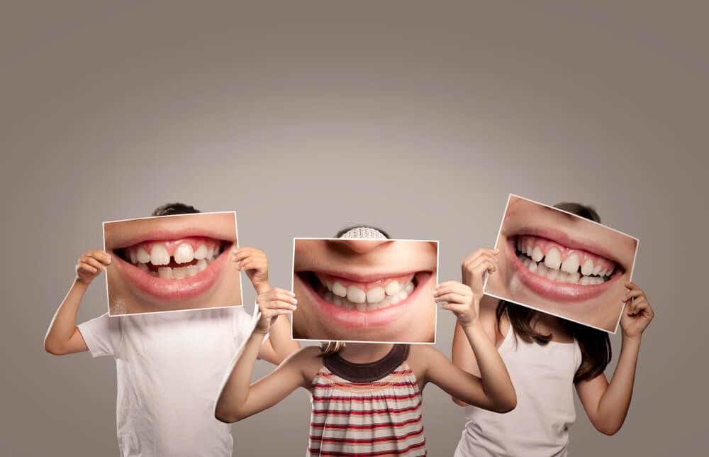 Oralno zdravlje dece – Briga o zubima treba da počne od najranijeg perioda