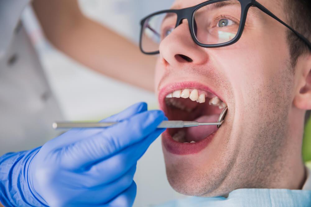 Svaki osmi građanin Srbije nema nijedan zub