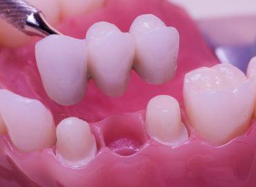 Zubni most - Idealna nadoknada za izgubljene zube