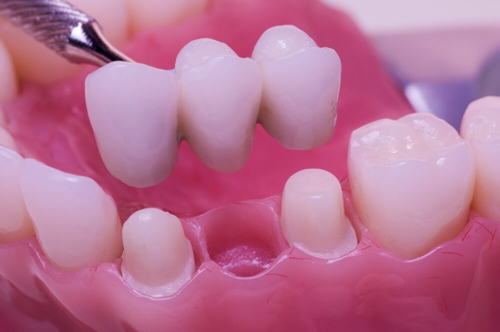 Zubni most – Idealna nadoknada za izgubljene zube