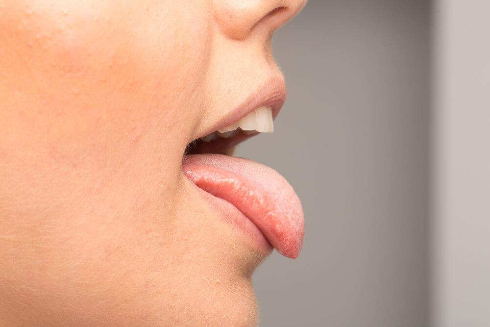 Oboljenja jezika