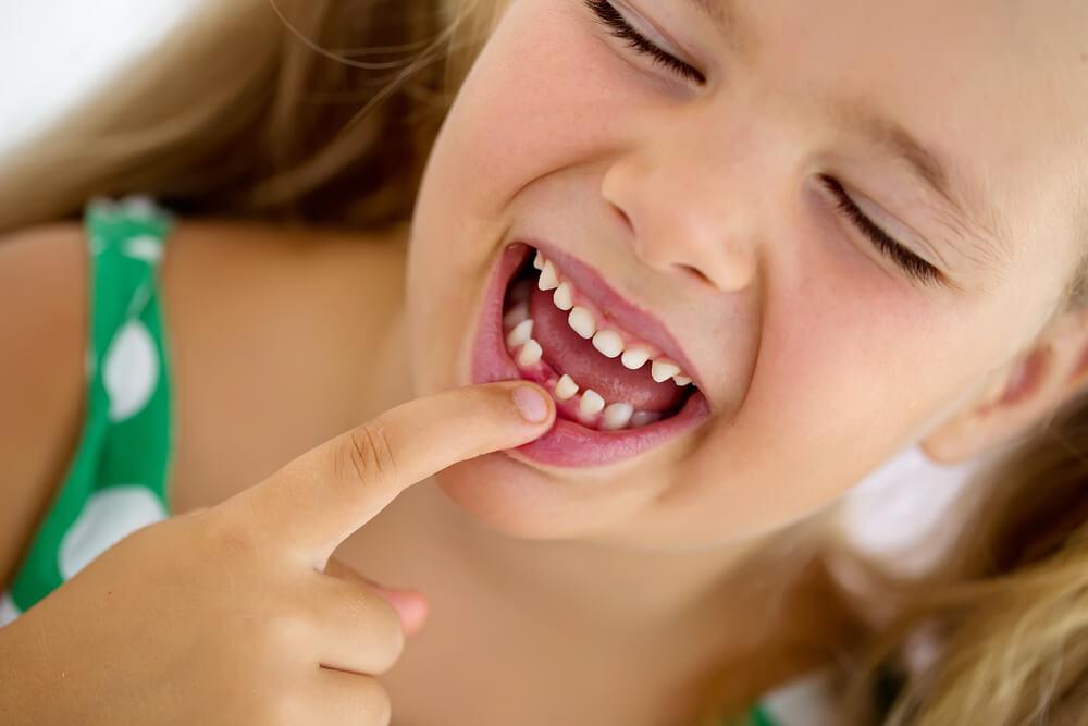 Mlečni zubi – zašto je važno popravljati ih?