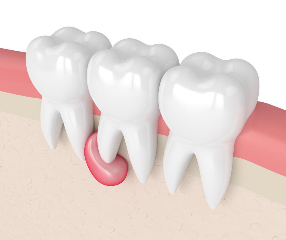 Cista na zubu – Uzroci, simptomi i načini lečenja