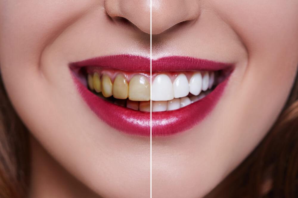 Bolesti koje izaziva loša oralna higijena
