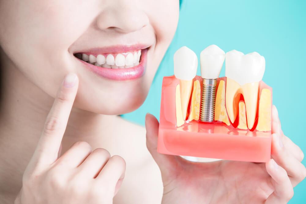 Sve što treba da znate o implantima