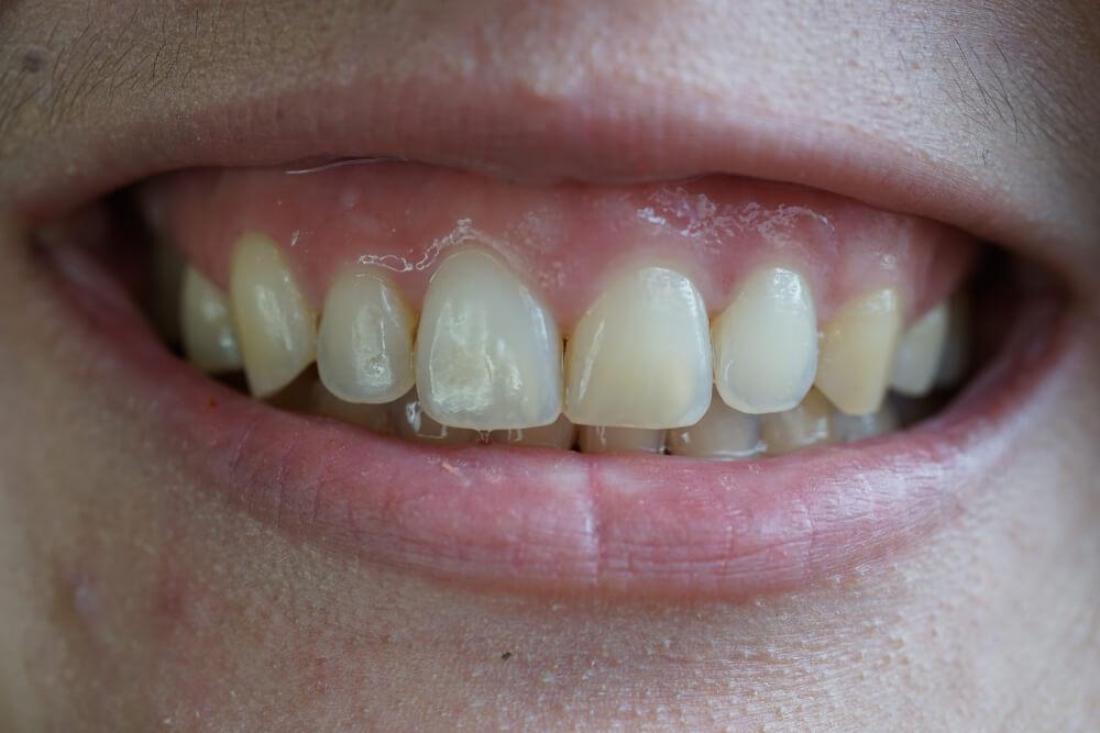 Estetska stomatologija na mekim tkivima