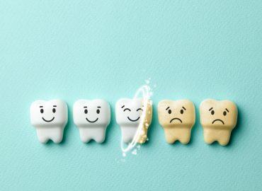 Pigmentacija na zubima