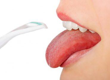 Covid jezik - Rani simptom Covida 19?