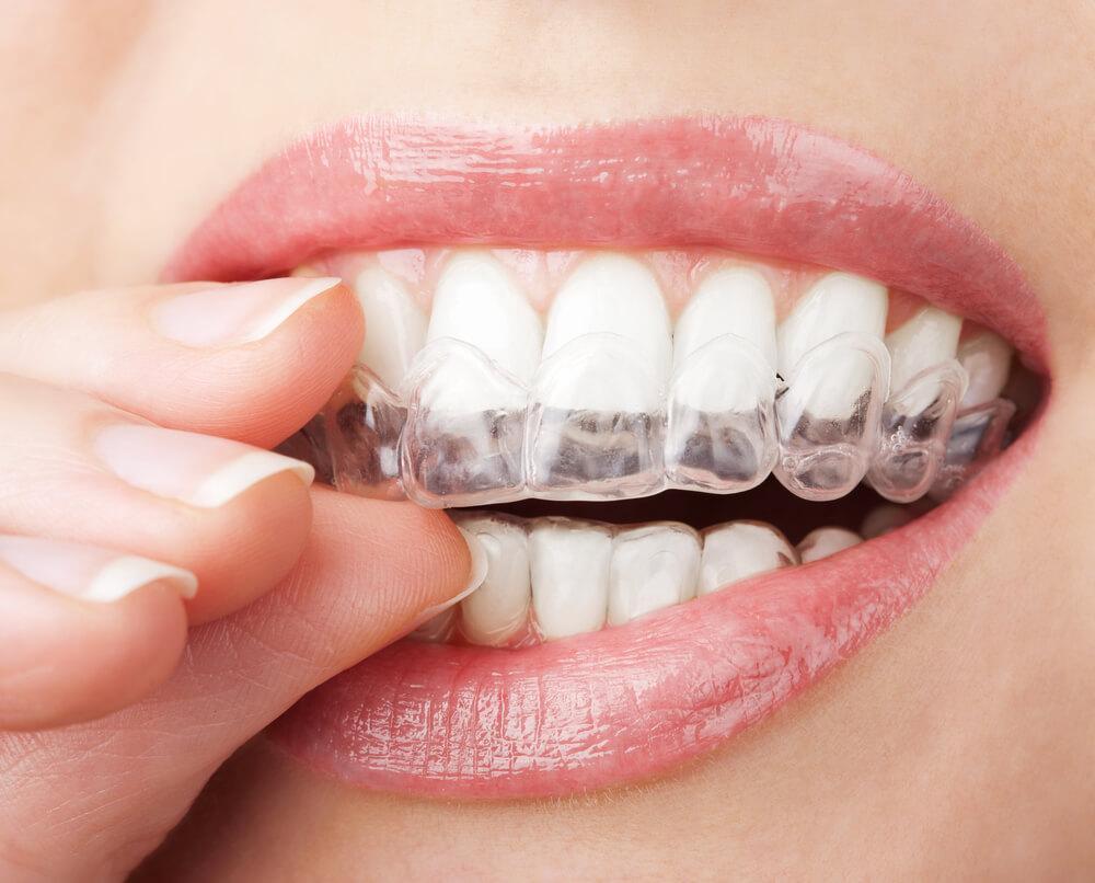 Ordinacijsko ili izbeljivanje zuba kod kuće